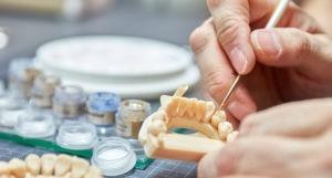 Veneers in Bremen setzt die Privatpraxis für Zahnmedizin ein.