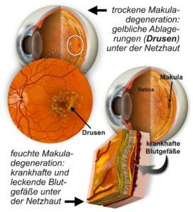Makuladegeneration, Grafik zur Entsehen von Drusen, Abbauprodukten aus dem Seh-Stoffwechsel.