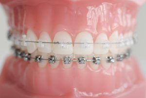 Brackets Zahnspange
