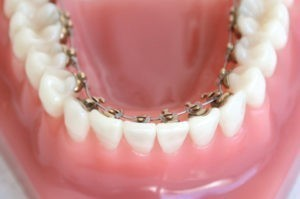 Eine Zahnspange für Erwachsene in der Frontansicht.