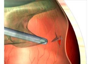 Netzhautabloesung Bremen: Grafik der Glaskörperchirurgie. Der Glaskörper wird entfernt und der Zug auf die Netzhaut entlastet.