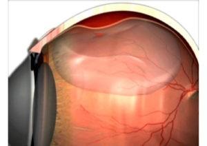Netzhautabloesung Bremen: bei der Glaskörperchirurgie verschließt eine Gasblase am Ende das Netzhautloch.